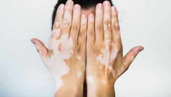 Vitiligo reprezintă o afecțiune a pielii și a mucoaselor și se caracterizează prin prezența unor pete cutanate albe, care se află în contrast cu pielea de culoare normală din jur. De obicei, este o afecţiune asimptomatică ce afectează calitatea vieţii pacienţilor din cauza impactului asupra aspectului fizic.  Nu este contagioasă.