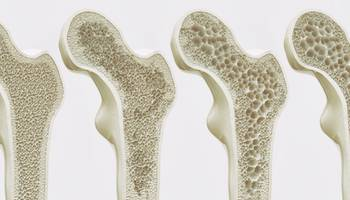 Osteoporoza dupa menopauza ➤ Tratamente pentru osteoporoza ➤ Tratamente hormonale pentru osteoporoza ➤ Dieta pentru osteoporoza ➤ Simptome osteoporoza
