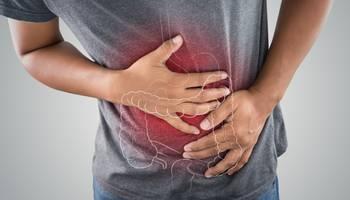 Factori de risc in cancerul de colon ➤ Simptome ➤ Diagnostic ➤ Stadii ➤ Tratament ➤ Prevenire