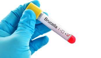 Bruceloza este o infecție zoonotică cauzată de genul bacterian Brucella. Bacteriile sunt transmise de la animale la oameni prin ingestie de produse alimentare contaminate, contact direct cu un animal infectat sau prin inhalare de aerosoli. Bruceloza nu se transmite de la om la om.