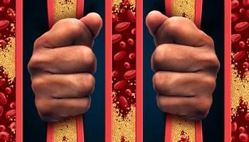 """Colesterolul bun"""" vs. """"colesterolul rău"""" ➤ Ce analize se fac pentru a afla valorile colesterolului ➤ Care este nivelul optim ➤ Ce ai de facut dacă nivelul de colesterol este mărit ➤ Află mai multe pe site!"""