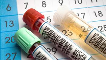 Analize medicale - COVID-19 - testare anticorpi SARS IgG/IgM