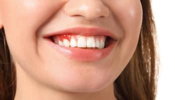 Parodontita – cunoscută sub numele de parodontoză (afecțiune a gingiilor și osului înconjurător dinților care conduce la pierderea acestora.