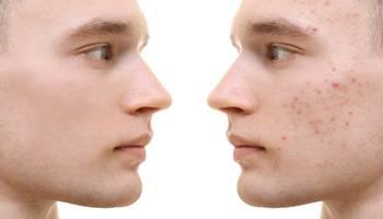 Acneea are un puternic impact psiho-social, prin afectarea emoţională, psihologică şi socială, mai ales a persoanelor cu acnee de lungă durată, rezistentă la tratament.