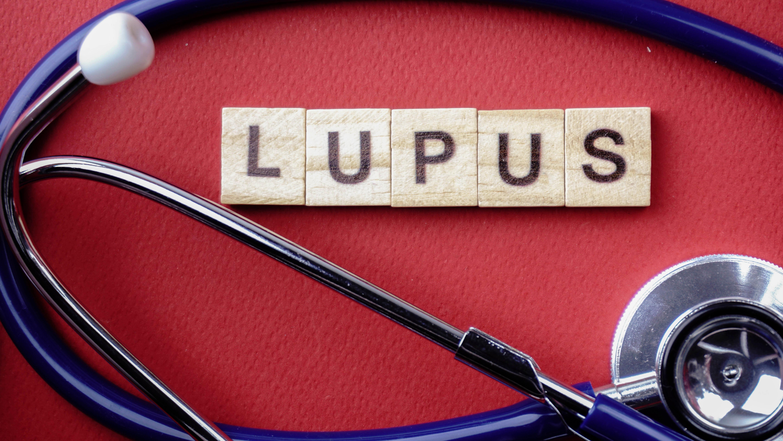Lupus boala autoimuna