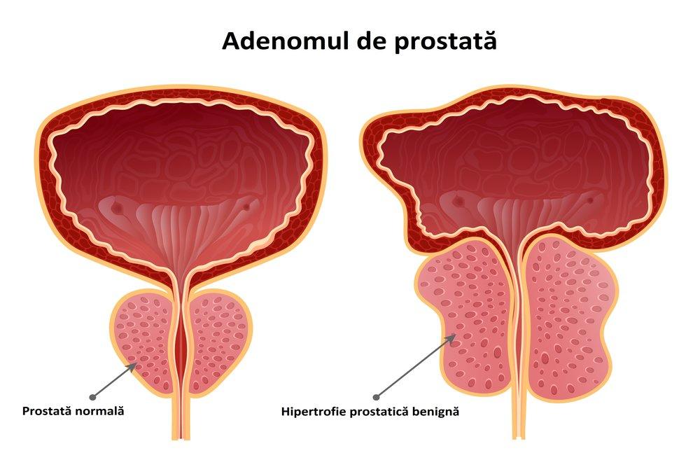 Adenom de prostata poze