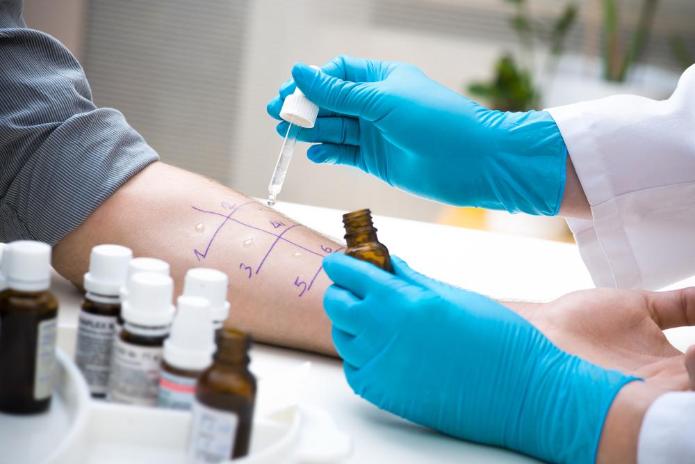 Alergiile si sistemul imunitar