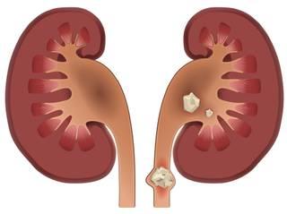 Poze cu pietre la rinichi