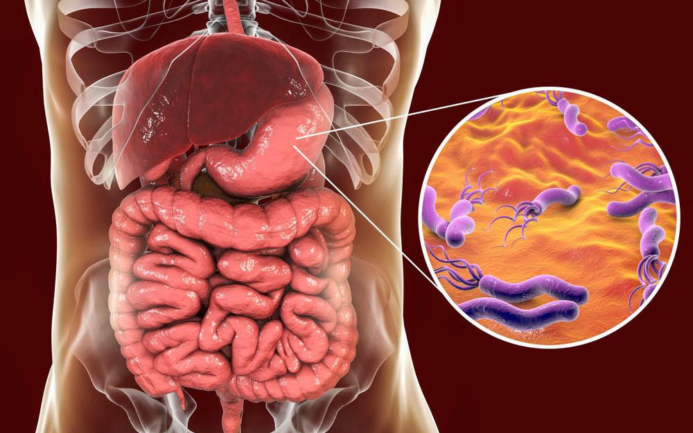 Simptomele infectiei cu Helicobacter Pylori